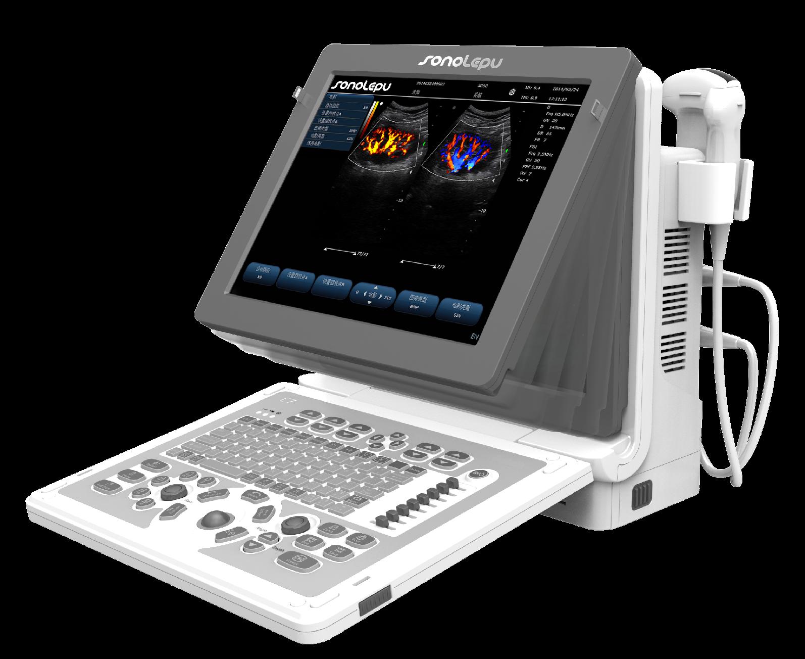 彩色多普勒超声诊断系统